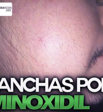 manchas sol minoxidil