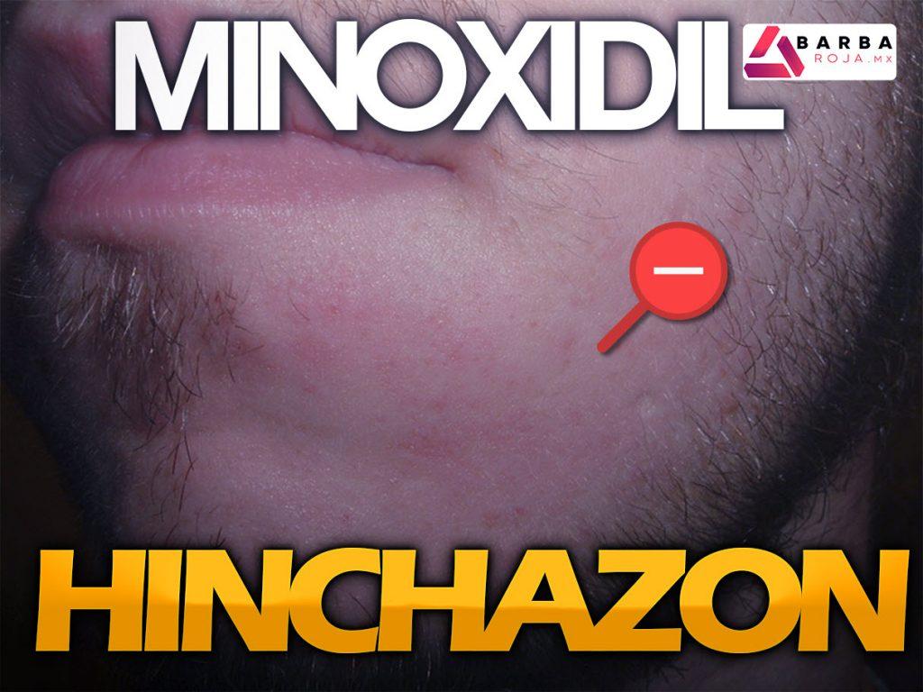 minoxidil inflamacion